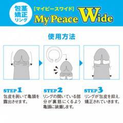 アダルトグッズ、包茎矯正リング マイピースワイド スタンダード(昼用) My Peace Wide Standardの見本画像5